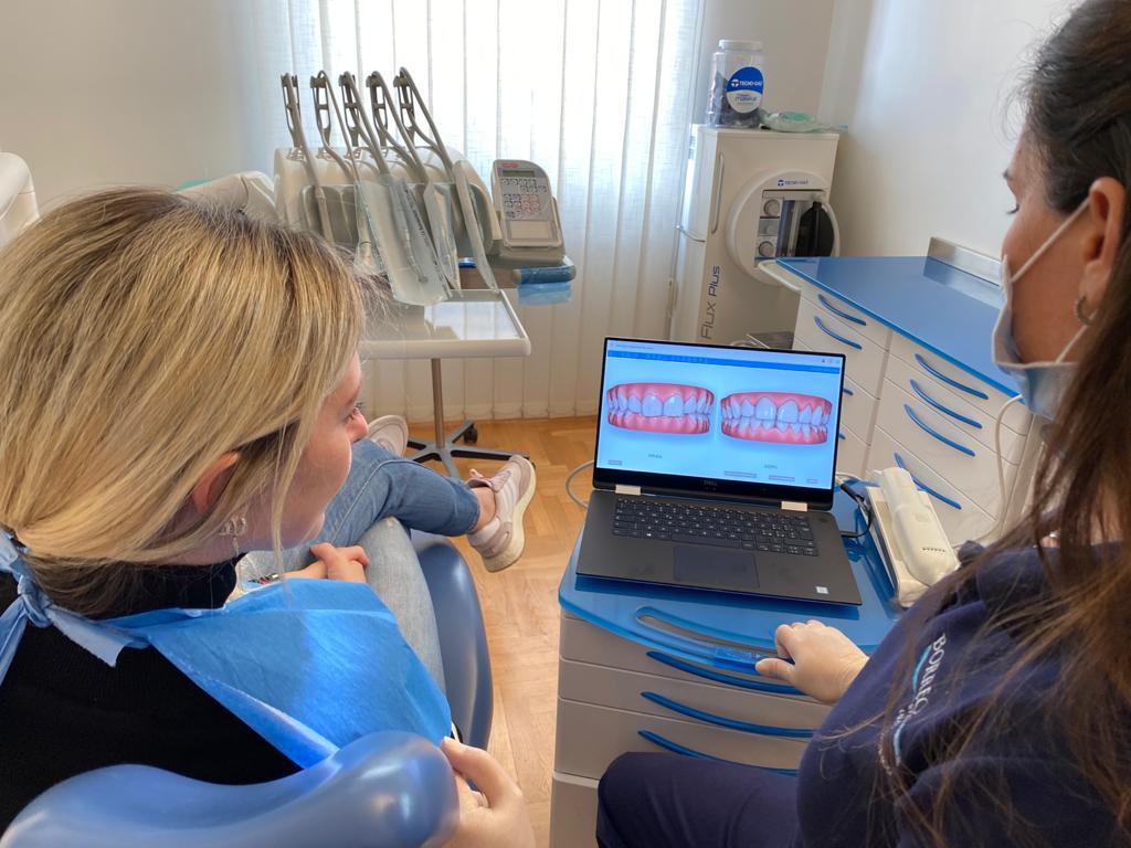 Ortodonzia invisibile scanner